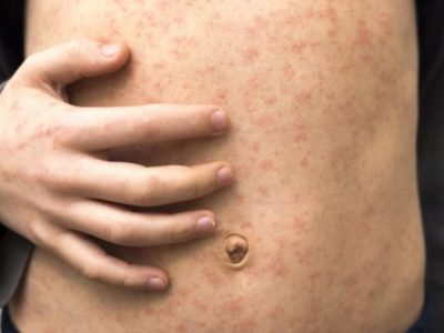 Measles Deaths 'Staggering & Tragic': Most Lives 'Cut Short Were Children Aged Under Five'
