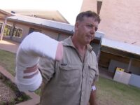 Australian 'a bit sore' after hand was caught in croc's jaws